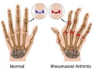 _wsb_354x273_11578737-la-artritis-reumatoide-de-articulaciones-de-los-dedos-de-la-mano
